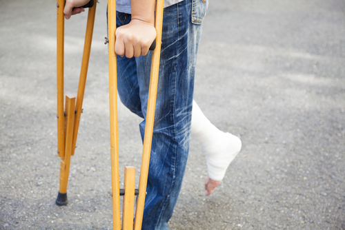 If you sustained a serious injury due to the negligence of someone else you may have grounds for an injury lawsuit. Contact Indianapolis personal injury lawyer at Baker and GIlchrist today