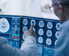 Do head injuries cause dementia?